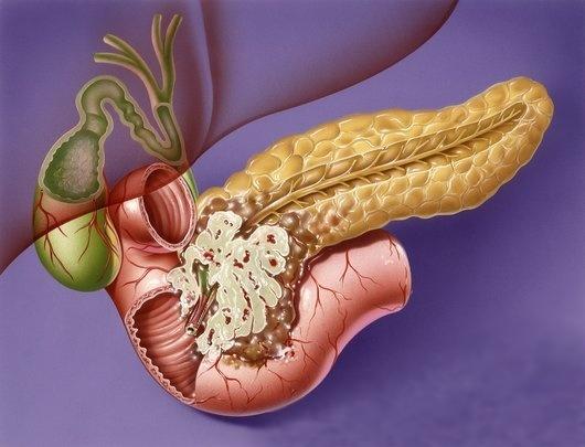 Аденокарцинома головки поджелудочной железы