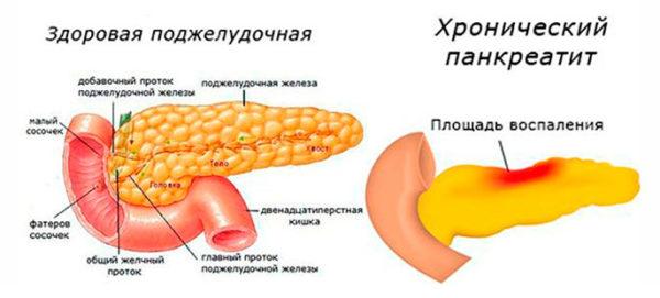 Неоднородная структура поджелудочной железы