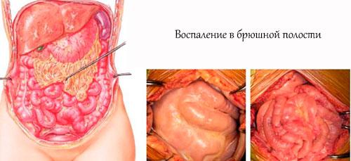 Разрыв поджелудочной железы