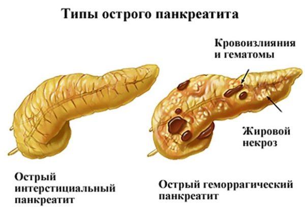 Строение поджелудочной железы человека