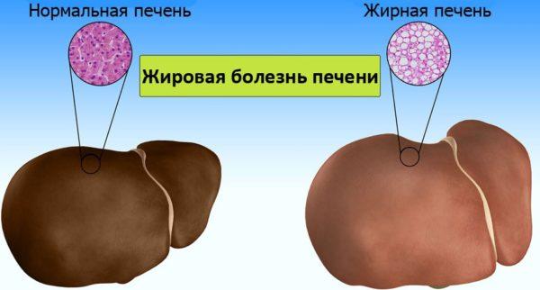 Паренхимные изменения поджелудочной железы thumbnail